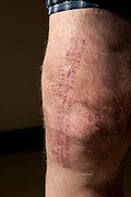 An elderly Irish prisoner's legs are scarred from being 'knee capped', a form of malicious wounding, often as criminalpunishmentortorture, in which the victim is injured in theknee. HMP Kingston, Portsmouth, United Kingdom. Kingston prison is a category C prison holding indeterminate sentenced prisoners.