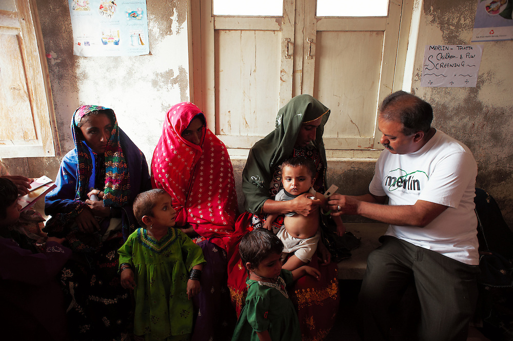 Dr Safraz takes a measurement of a child's arm to measure malnutrition in the  Tarqwaja Government Dispensary, Thatta, Sindh, Pakistan on June 30, 2011.