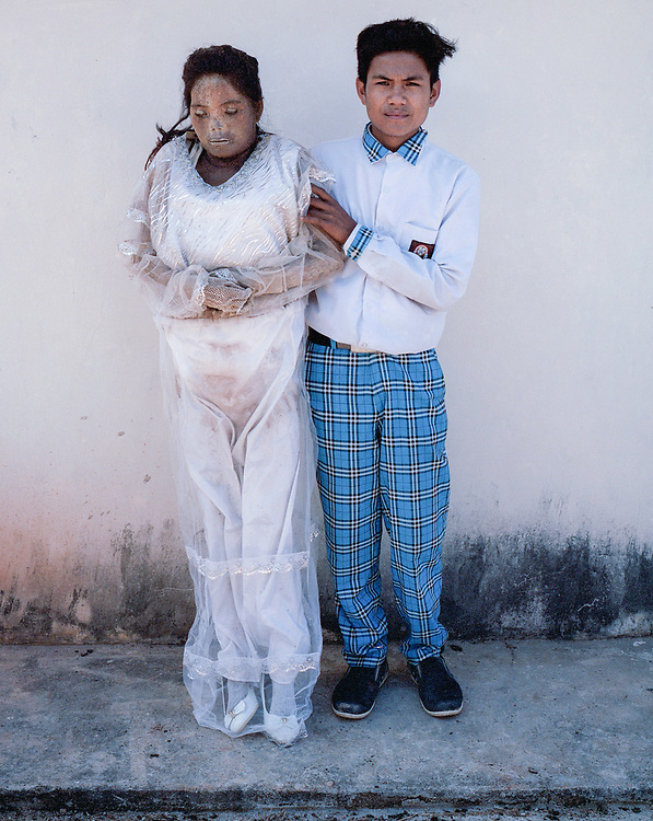 Nofial (19) with his mother, Sarce Limbong, who died in 2015 at age 43.<br />