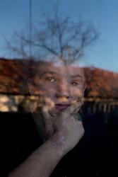 Ukraina<br /> Aleksandr Shestak, 17 år, skadad av en mina, då just fyllda 16. Han skyddade sin syster när något exploderade utanför huset på den andra sidan vägen i byn Nijne Krinskoe.<br /> <br /> Photo: Niclas Hammarström