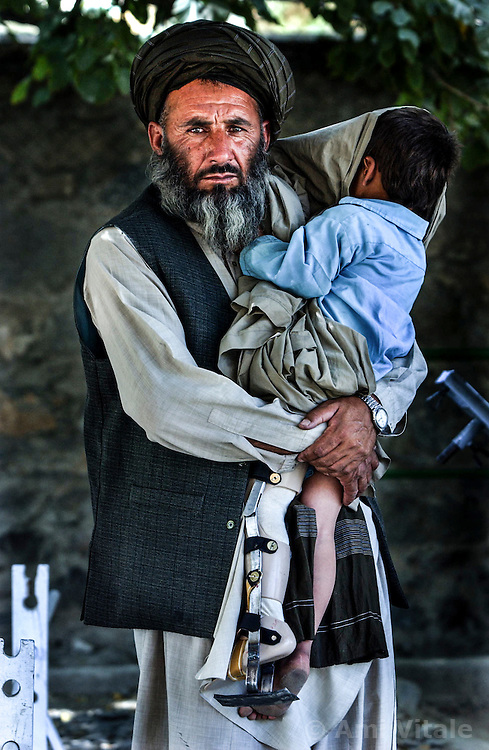 Mehrabab, 50, holds his son Hagmatullah at the orthopedic center set up by the International Committee for the Red Cross in Kabul, Afghanistan August 5, 2002.  (Photo  by Ami Vitale)