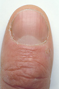 thumb nail and knuckle