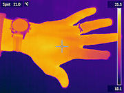 A Thermogram of an injured hand.  Note the colder temperature of the index finger.  The top part of the finger was lost in an accident.  The lack of blood flow in the finger results in a lower temperature.  The different colors represent different temperatures on the object. The lightest colors are the hottest temperatures, while the darker colors represent a cooler temperature.  Thermography uses special cameras that can detect light in the far-infrared range of the electromagnetic spectrum (900?14,000 nanometers or 0.9?14 µm) and creates an  image of the objects temperature..