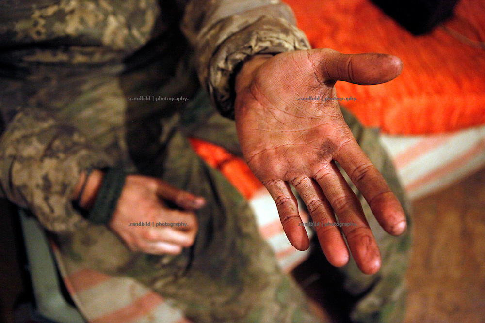 Charlie&acute;s dirty hand after spending a week outside at the frontline.<br />