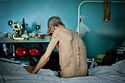 Michael, 63 years old. Diagnosis: multidrug-resistant tuberculosis. Kherson TB hospital, July 19th, 2011..From the words of the patient:.worked as a bricklayer on a construction site. After surgery on the stomach, he went for the check to a doctor, who found spots in the lungs,after this he was sent immediately to the clinic. He has been treating with the intervals of 2-3 years since 1983. The reaction of his organism becomes acute every autumn, so he always stays in hospital for the prevention. Earlier, in USSR times the food was very good, but nowadays he buys food by himself. 4 years ago his wife died, and then he had a stroke. He started to walk using the stick and had problems with speech. Son buys all the medications and products. In 1995, the World Health Organization declared the tuberculosis epidemic in Ukraine. Over the past 16 years the situation has greatly worsened. Each day TB takes lives of 30 people, annually - about 10 thousand.