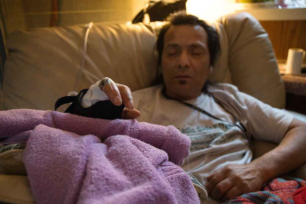 Bearpaw Galindo lost two fingers on his right hand after his ham radio tower collapsed on his hands while he was working on the antenna on February, 14. Galindo has already endured three surgeries and is scheduled for a fourth to repair damaged tissue and restore some functionality to his hand.
