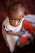 A malnourished child is sitting on the floor of a feeding centre run by UNICEF in the town Shivpuri, Madhya Pradesh, India.