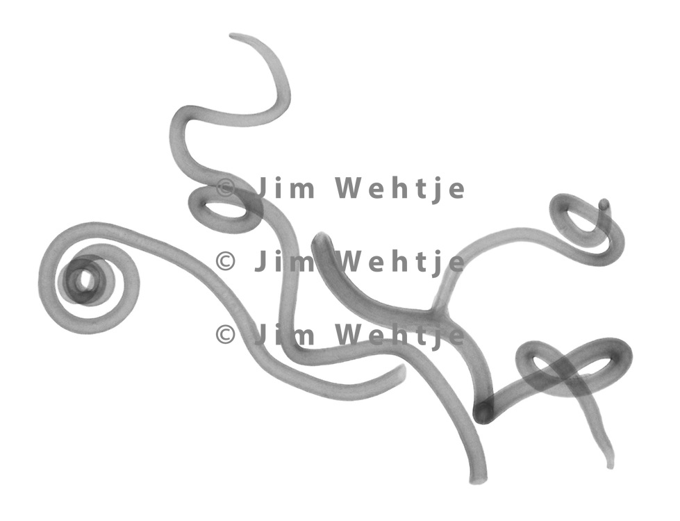 X-ray image of wild grape vine tendrils (Vitis sylvestris, black on white) by Jim Wehtje, specialist in x-ray art and design images.