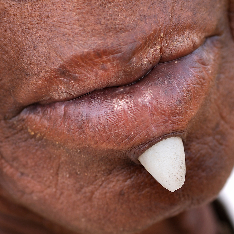 Benin, Boukoumbe December 01, 2006 - Old woman with a stone below the lip. represents wealth.