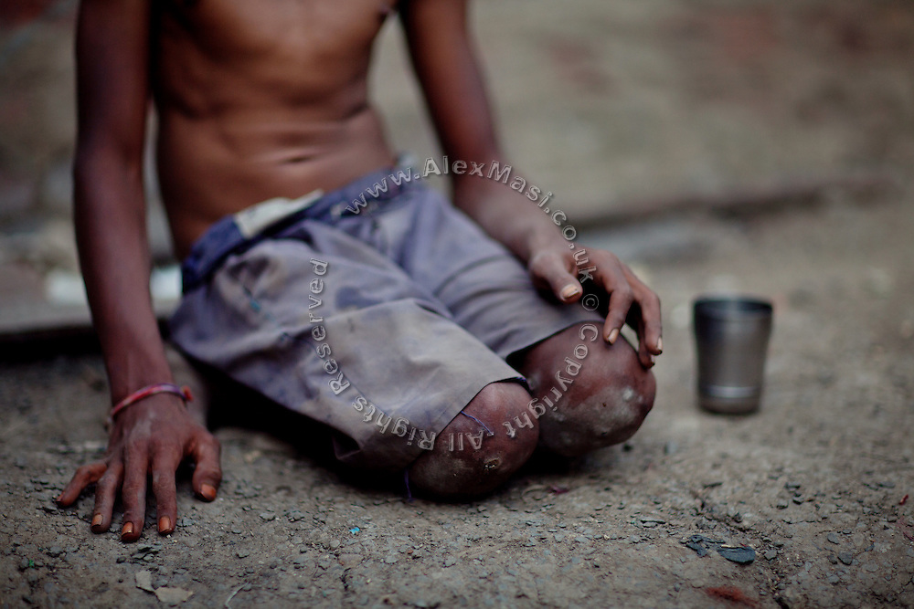 Sachin, 18, a boy suffering from a severe leg paralysis due to the consumption of contaminated water in early age, is sitting inside his home in the impoverished Oriya Basti colony in Bhopal, Madhya Pradesh, India, near the former Union Carbide (now DOW Chemical) industrial complex.