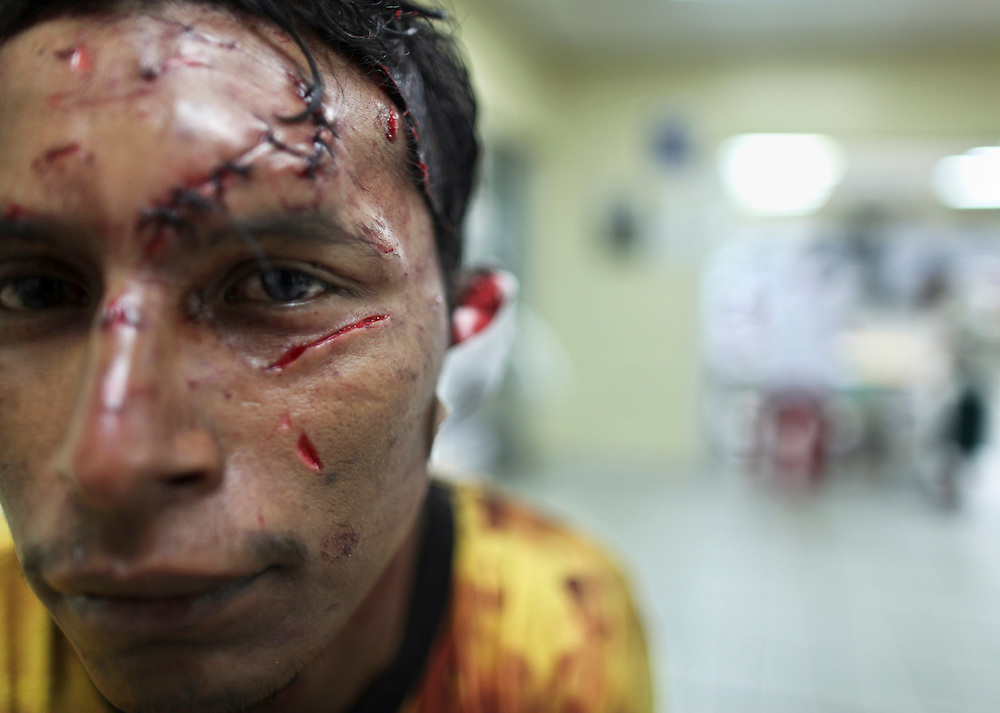 In this March 10, 2012 photo, a man who said he was injured when attacked with a machete during an attempted robbery sits at the Catalino Rivas public hospital emergency room in San Pedro Sula, Honduras. A wave of violence has made Honduras among the most dangerous places on Earth, with a homicide rate roughly 20 times that of the U.S. rate, according to a 2011 United Nations report.