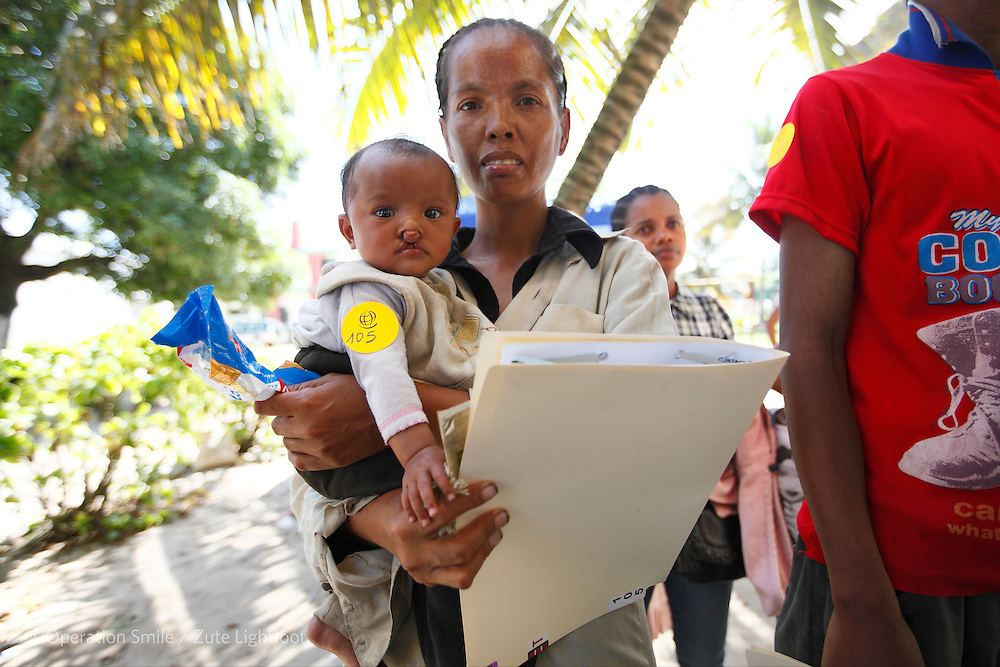 105, Henintsoa Patricia Rasoarimalala, female, 5 months old, BCL, during screening. Operations Smile's 2015 mission to Tamatave at Tamatave General Hospital. Madagascar. 3rd September 2015.<br /> <br /> The Postal Code Lottery from Sweden has donated approximately &pound;1/2 million for Operation Smile to build up a surgical center in Antsirabe in Madagascar. These photographs form a body of work examining the current situation of health care in Madagascar. The specific focus is on those in need of surgery and the barriers they face in getting access to care, the capacity and infrastructure of existing hospitals and the contributing factors of poverty and lack of resources.