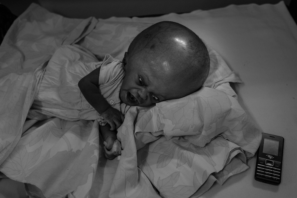 A boy diagnosed with hydrocephalus cries on a bed at Cure Children's Hospital on February 5, 2017 in Mbale, Uganda. Hydrocephalus is a condition in which an excess of cerebral fluid accumulates in the brain. The condition, which can be extremely fatal left untreated, causes a harmful amount of pressure on the head and a increase head size.