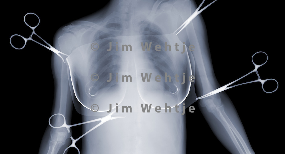 X-ray image of breast augmentation (blue on black) by Jim Wehtje, specialist in x-ray art and design images.