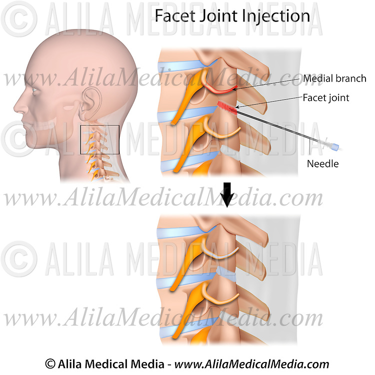 cervical facet joint injection 2 | Alila Medical Images