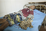 Jan. 30, 2016 - Dhaka, Bangladesh - DHAKA, BANGLADESH - <br /> <br /> The man who's turning into a TREE: Bangladeshi suffers rare condition that causes tree-like 'roots' to grow from his hands and feet <br /> <br /> A Bangladeshi man dubbed as the tree-man because of wart-like lesions growing from his hands and feet has been admitted to hospital. <br /> Abul Bajandar, 25, from Khulna, has been suffering from a disease known as Epidermodysplasia Verruciformis - a rare and inherited skin disorder - for the past seven years. <br /> Doctors at the Dhaka Medical College and Hospital (DMCH) will now decide on his treatment after forming a medical board of experts.<br /> <br /> Dr Samanta Lal Sen, chief coordinator of National Institute of Burn and Plastic Surgery of the DMCH, made the announcement today. <br /> On duty doctors visited Mr Bajandar at the burn unit, where he had been admitted today. <br /> According to the dailystar.net, the ricksaw-van puller was previously taken to the Gazi Medical College Hospital in Khulna. <br /> According to local reports, the original tree-man Dede Koswara, of Indonesia, died today. Tribunnnews.com reported that it wasn't the disease to cause his death. <br /> In 2008 the Discovery Channel told the story Mr Koswara. In the programme, he returned home from hospital after having six kilo warts surgically removed from his body. <br /> An American doctor had previously said the warts were the result of severe Human Pappiloma Virus (HPV) infection and doctors thought his type was the worst in the world. <br /> The father-of-two first noticed the warts on his body after cutting his knee as a teenager.<br /> He was later sacked from his job and shunned by neighbours when the branch-like growths covered much of his body and stopped him from working. <br /> At the time it was reported that he would need at least two operations every year. <br /> Previously, Mr Koswara was forced to take part in a circus act in Bandung in order to make ends meet. <br /> But once his case was publicised donations from the public began to flood in for his treatment. <br />
