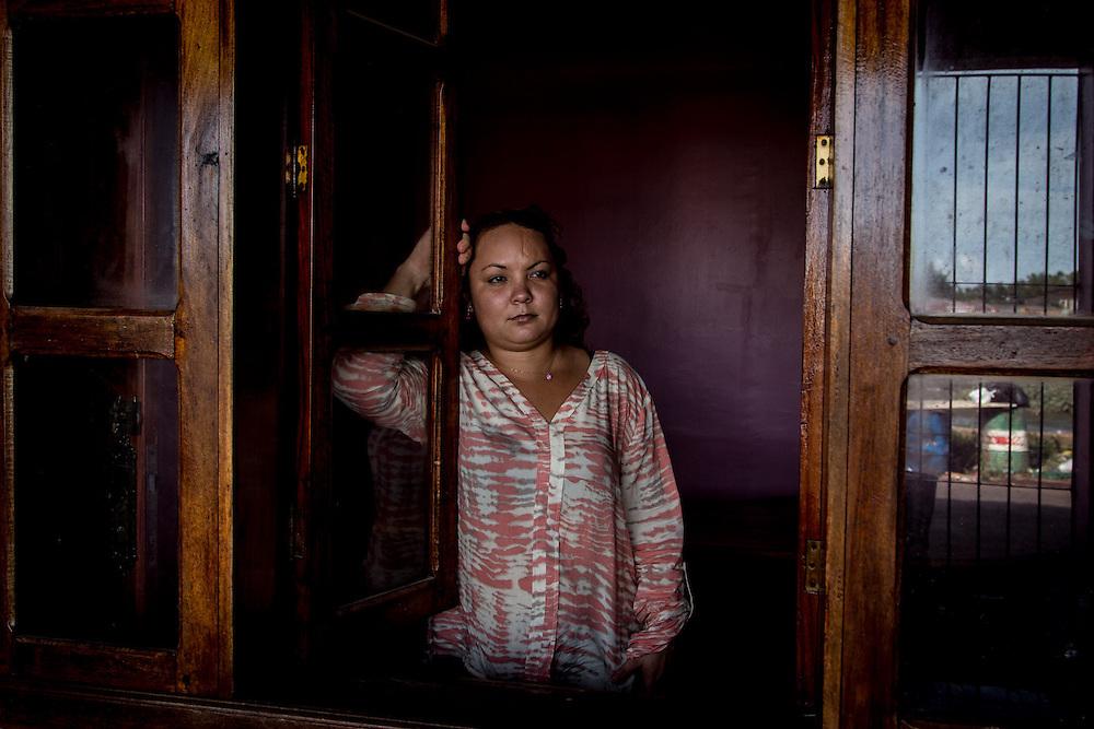 Fabiola, 27 anni. Grazie alla chierurgia 2 anni fa il suo cuoio capelluto è stato ricostruito. Al contrario di altre donne meno fortunate, suo marito Manuel, con il quale viaggiava al momento dell'incidente, le è stato sempre accanto.