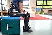 Nederland, Nijmegen, 5-7-2016Oefenen met de looprobot bij de St Maartenskliniek .Foto: Flip Franssen