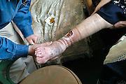 Nederland, Nijmegen, 16-5-2007Een huisarts behandelt een open wond aan het been, scheenbeen van een oudere vrouw die zich gestoten heeft. De wond wil maar niet genezen.Foto: Flip Franssen