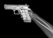 hand holds a gun under x-ray