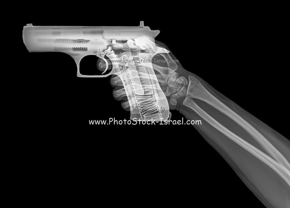 hand holds a gun under x-ray