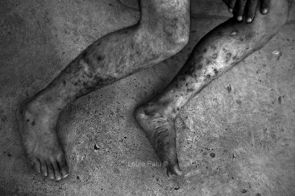 Multiple track marks from injecting heroin seen in the legs of a Mexican man in Ciudad Juarez who was deported to Mexico from the U.S. He was first exposed to illegal drugs in the U.S. became an addict and was eventually deported. Drug addiction in Mexico along the U.S. border is rising due to the amount of illegal drugs passing through border towns..(Credit Image: © Louie Palu/ZUMA Press)