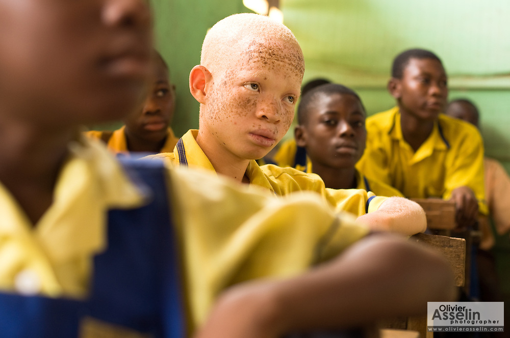 "David Amuzu, 12, sits among his classmates school in the town of Amasaman, Ghana on Thursday January 17, 2008. ""I can't see what the teacher is writing on the blackboard"", he says. The pigment that gives skin its color - called melanin - is also a key element in the development of the eye. Because of the absence of melanin, most people with albinism have poor eyesight, especially from a distance."