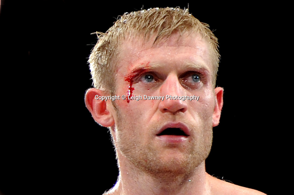Tony Jeffries takes a cut above the right eye, which required stitches following the fight against Paul Morby in a Light Heavyweight contest at the Doncaster Dome, Doncaster, UK, 3rd September 2011. Frank Maloney Promotions. Photo credit: Leigh Dawney 2011
