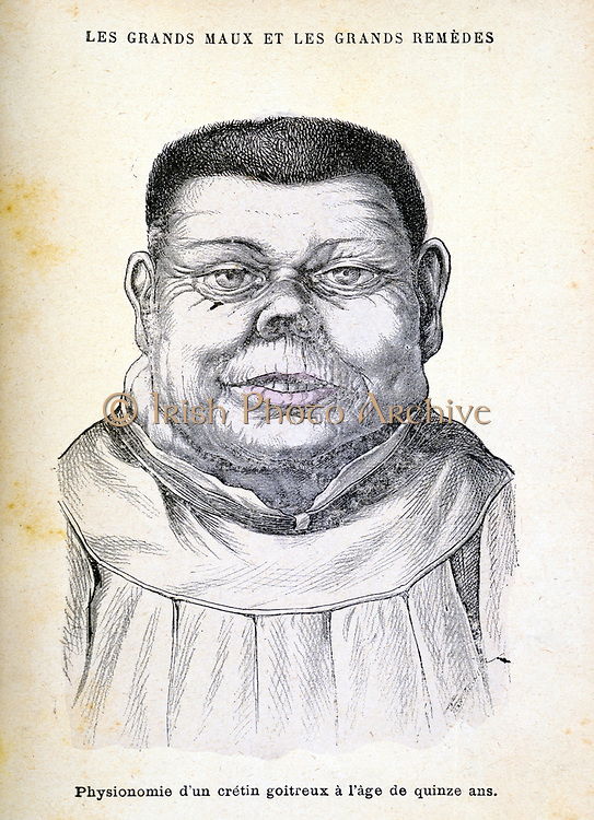 Cretin aged 15. Cretinism in infants and children is caused by defective thyroid gland and failure to produce the hormone thyroxine.  Sufferers are mentally and physically retarded.  The thyroid is part of the endocrine gland system.  From 'Les Grands Maux et les Grands Remedes' ('The Principal Illnesses and Their Remedies'), Jules Rengade, (Paris, c1890).  Engraving.