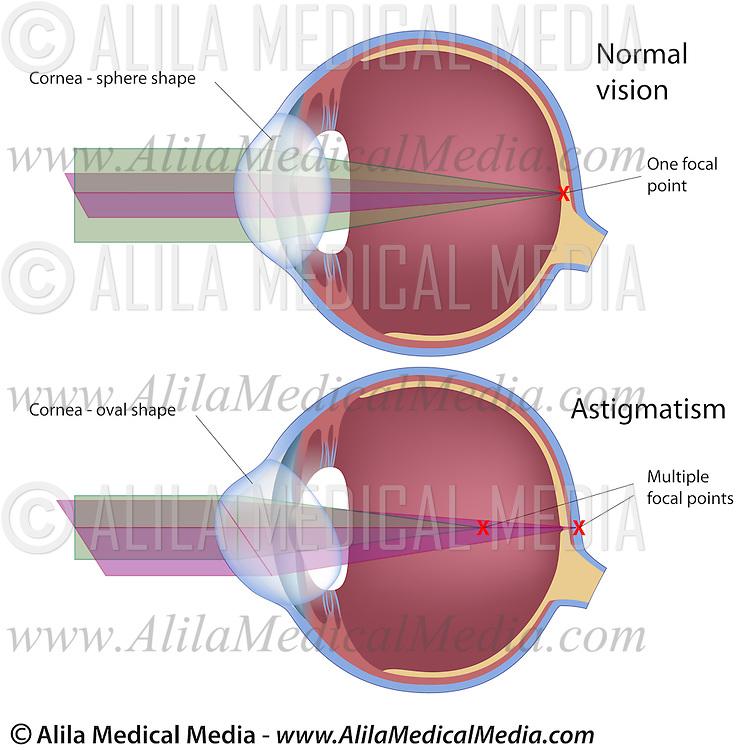 Astigmatism Labeled Diagram Alila Medical Images