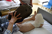 CHONGQING, CHINA - APRIL 27: (CHINA OUT) <br /> <br /> One foot bigger than the other<br /> <br /> Twenty-one-year-old boy Liu Huichang receives an operation at Southwest Hospital on April 27, 2015 in Chongqing, China. Twenty-one-year-old boy Liu Huichang from Qu County of Sichuan province suffered macrodactyly that his right foot was in 43 centimeters long and 14 centimeters thick. The weird and ugly right foot troubled his life and work and so he had to operate on it. <br /> ©Exclusivepix Media