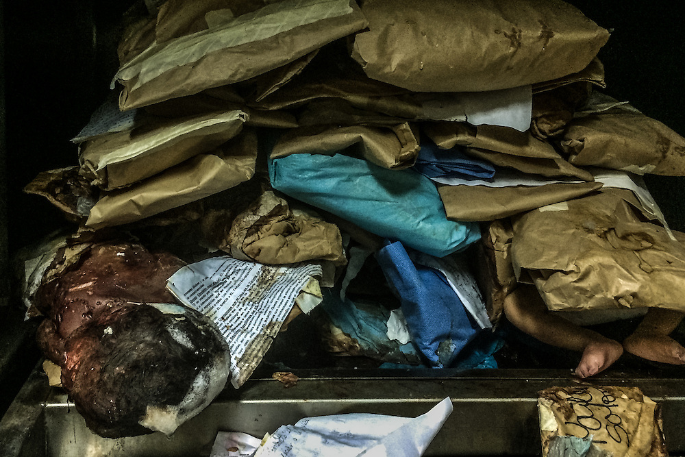PUERTO LA CRUZ, VENEZUELA - APRIL 15, 2016: Discarded and decomposing baby corspes and fetuses, some in paper bags, some not - as seen in a freezer in the morgue of Hospital Universitario Dr. Luís Razetti - one of the worst state-run, public hospitals in Venezuela.  Doctors compare it to working in a war zone - they regularly have to turn patients away, because they don't have the majority of medicines  or medical equipment and supplies needed to give them medical attention.  When they do accept patients, they have to work with extremely limited resources, because they don't have the supplies they need for things like X-Rays,  and many exams nd operations.  The hospital's infrastructure is crumbling, and staff don't have all the cleaning supplies required to keep the hospital sanitary. The hospital also suffers from weekly shortages of running water and electricity.  In April, several babies died when a power outage turned off the incubators, and the hospital's generator failed to work because of lack of maintenance.  The same month, authorities found over 100 pieces of medical equipment, stolen from the hospital in the home of the assistant to the hospital's director.  Despite having the largest oil reserves in the world, falling oil prices and wide-spread government corruption have pushed Venezuela into an economic crisis, with the highest inflation in the world and chronic shortages of food and medical supplies.  PHOTO: Meridith Kohut