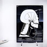 Nederland, Kerkrade, 10 maart 2016.<br /> Een tandarts-gnatholoog behandelt patiënten met klachten in het kauwstelsel. <br /> Op de foto: tandarts-gnatholoog Jan Thijssen luistert door een stethoscoop in het oor naar het kaakgewricht van een patient.<br /> Jan Thijssen beschikt in zijn praktijk over een kaakgewricht waarmee hij de werking van de kaak demonstreert.<br /> <br /> Model of Craniomandibular and Vertebral Biomechanics.<br /> <br /> Foto: Jean-Pierre Jans