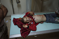 JULY 10 2013 Injured in Syria