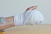 bandaged hand of a broken third metacarpal bone