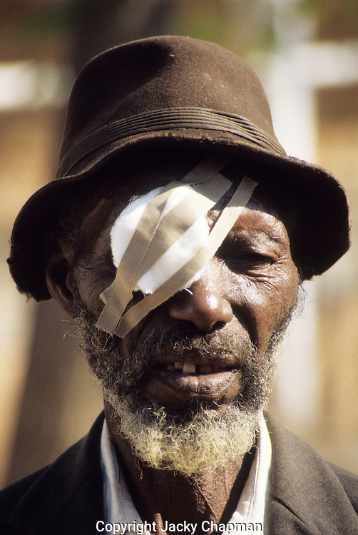 Patients at Zimbawean village where flying doctors flew in to perform cateract eye operations on local people