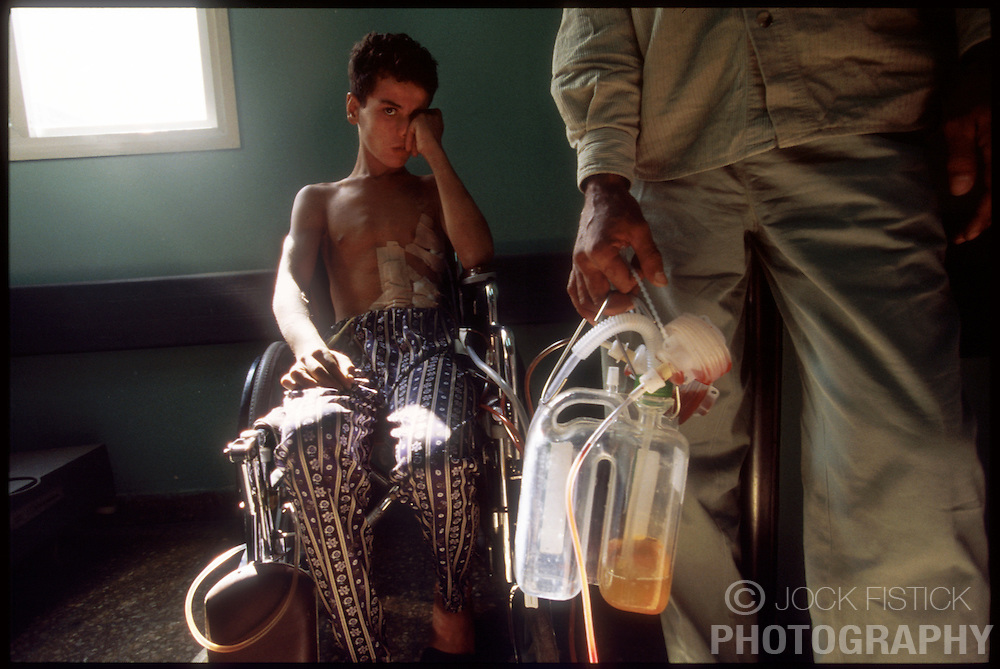 WOUNDED WARRIOR - A young Palestinian boy recovers at Shifa Hospital in Gaza City from bullet wounds he received during a clash with Israeli soldiers. (Photo © Jock Fistick)