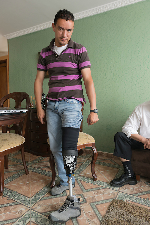 Hernan Dario, who lost a leg when he stepped on a landmine while on patrol in the Colombian army, shows his prosthetic leg at his apartment in Bogota.