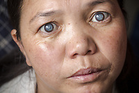 Ladakh 2016 Thinles Lamo and her very mature cataracts.