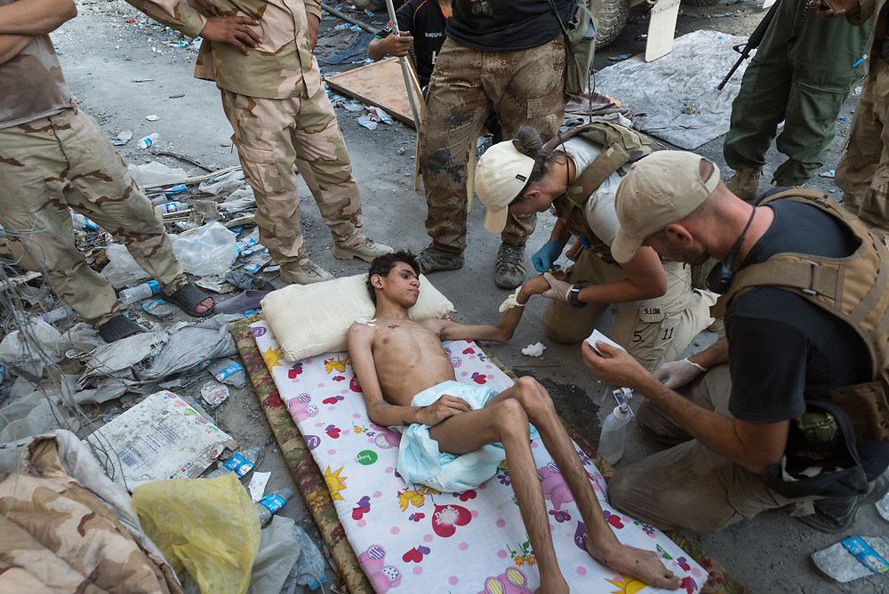 Frontline medics treat an injured and severely malnourished teenager inside the Old City of Mosul, Iraq, on July 3, 2017. <br /> <br /> As the fighting intensified to liberate the remaining pocket of ISIS-held territory in Mosul's Old City, volunteer medics from around the world, together with colleagues from the Iraqi forces, provided lifesaving treatment to sick and injured civilians and soldiers on the frontline. After several months without enough food, water and fuel while trapped in the Old City, many civilians showed signs of acute malnutrition.