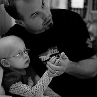 "Nick Jacobs holds his daughter Kiersa during an overnight stay at Doernbecher Children's Hospital in November. ""It's been a complete life change,"" Nick said. ""We've had to put our house up for sale. Change jobs. Change schools. Change just about everything."""