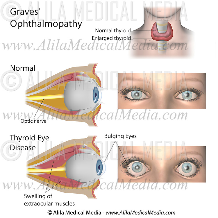 Thyroid Eye Disease Alila Medical Images