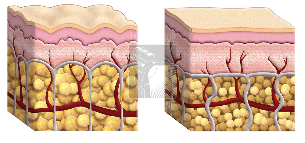 illustrated cross sections of skin showing  fat distribution in subcutaneous tissue with cellulite on the right diagram and normal fat cells on the right diagram