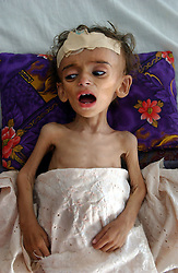 KABUL,AFGHANISTAN - AUGUST 29: Zeeya-u-din, 1, who suffers from severe malnutrition cries in the Indira Ghandi Hospital for Children August 29, 2002 in Kabul Afghanistan. The hospital has 300 beds but usually it is filled at double capacity with only 118 doctors. One in four children die before the age of 5 in Afghanistan. (Photo by Ami Vitale/Getty Images)