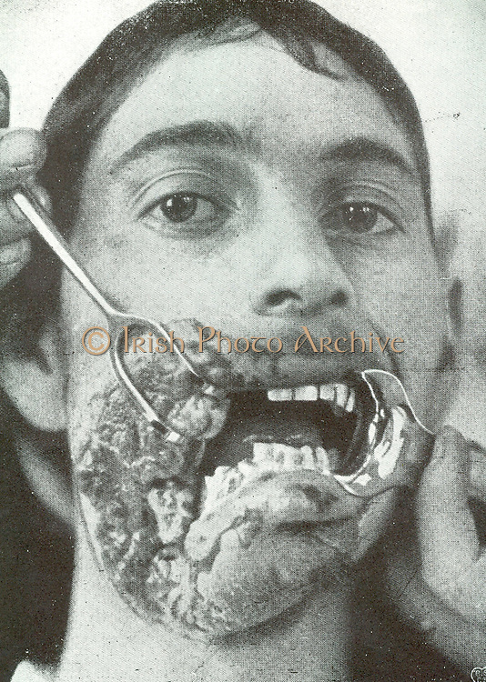 Horror of war: Facial injuries to German soldier in World War I.