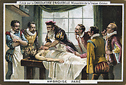 Ambroise Pare (1509-1590) French military surgeon, operating on a patient. Chromolithograph c1900.