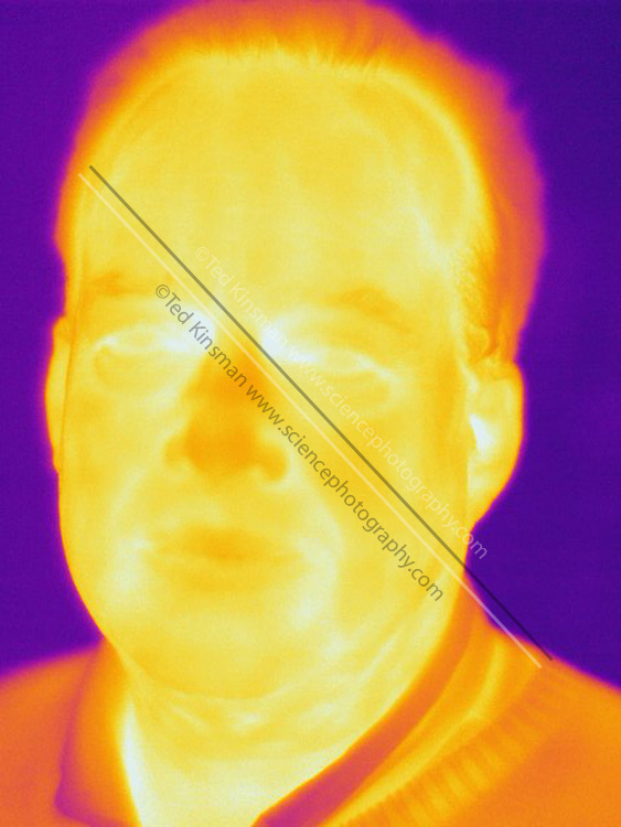 A Thermogram of a man.  The different colors represent different temperatures on the object. The lightest colors are the hottest temperatures, while the darker colors represent a cooler temperature.  Thermography uses special cameras that can detect light in the far-infrared range of the electromagnetic spectrum (900?14,000 nanometers or 0.9?14 µm) and creates an  image of the objects temperature..