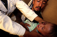 KABUL 04 August 2005..Dr. Parwani, Head of Dermatology at Avecina Emergency Hospital, looks at Shabana's lump. ..His first diagnosis is  Congenital Hemangioma, a tumor made-up of dilated blood vessels, and that it can be treated only with plastic surgery.....Hemangiomas are the most common type of congenital anomaly in childhood. Although many resolve spontaneously, intervention is required when their growth could damage vital adjacent structures. ..