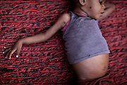 A malnourished child is lying on the floor of a feeding centre run by UNICEF in the town Shivpuri, Madhya Pradesh, India.