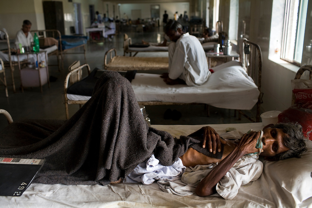 A patient lies on his bed at the Group of TB Hospitals in Mumbai, India.